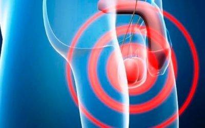 De un dolor de testículos a una molestia en el abdomen. El extraño camino para llegar a eso